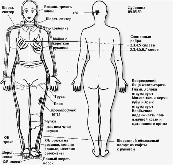 Одежда и повреждения тела Людмилы Дубининой.